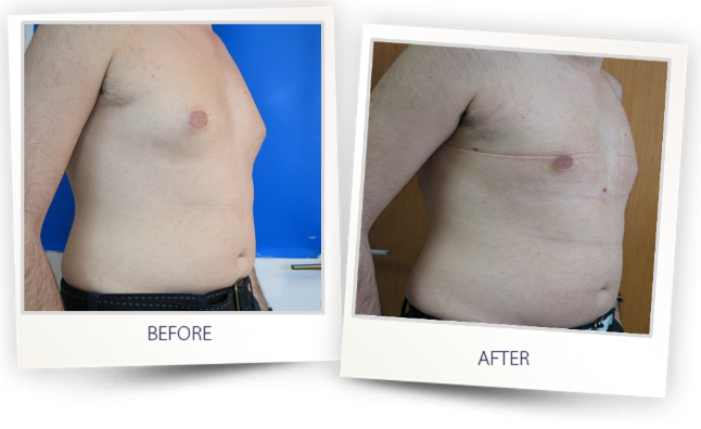 Lipo Life Complete solution for liposuction